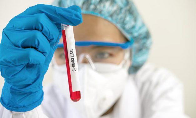 Testes Covid-19 exclusivos aos profissionais da saúde são feitos em apenas 24 horas por laboratório de Cascavel
